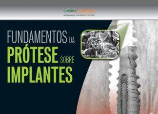 livro prótese sobre implantes